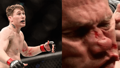 Donald Cerrone got his nose broken when he was knocked out the in first round by Darren Till at UFC Fight Nigh 118 from Poland.