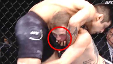 Jason Knight bites Gabriel Benitez at UFC Fight Night 123.