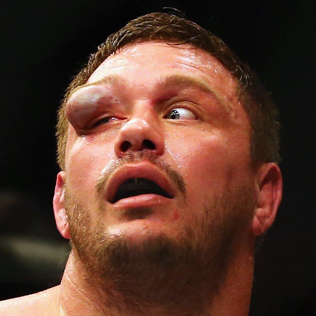 "Meathead's"" Head — Just A Swollen Eye… No Big Deal! - MMA"