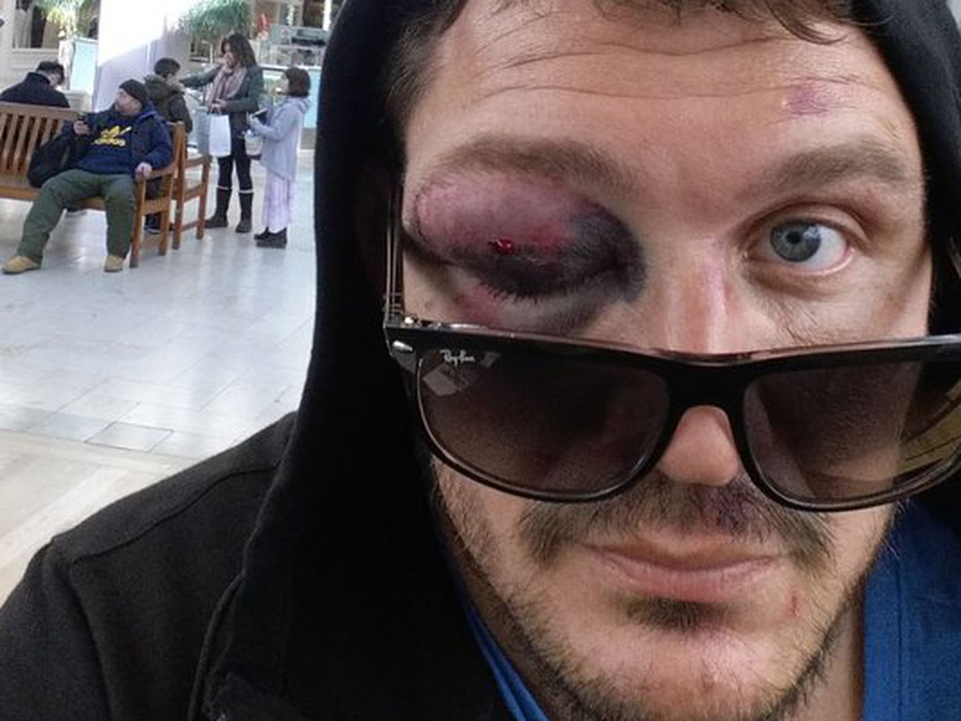 "Meathead's"" Head — Just A Swollen Eye… No Big Deal! - MMA Imports"